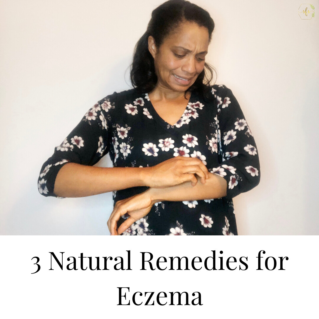 3 Natural Remedies for Eczema